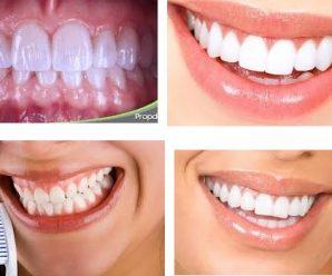 La Odontología neurofocal